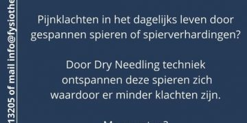 Dry Needling nodig?